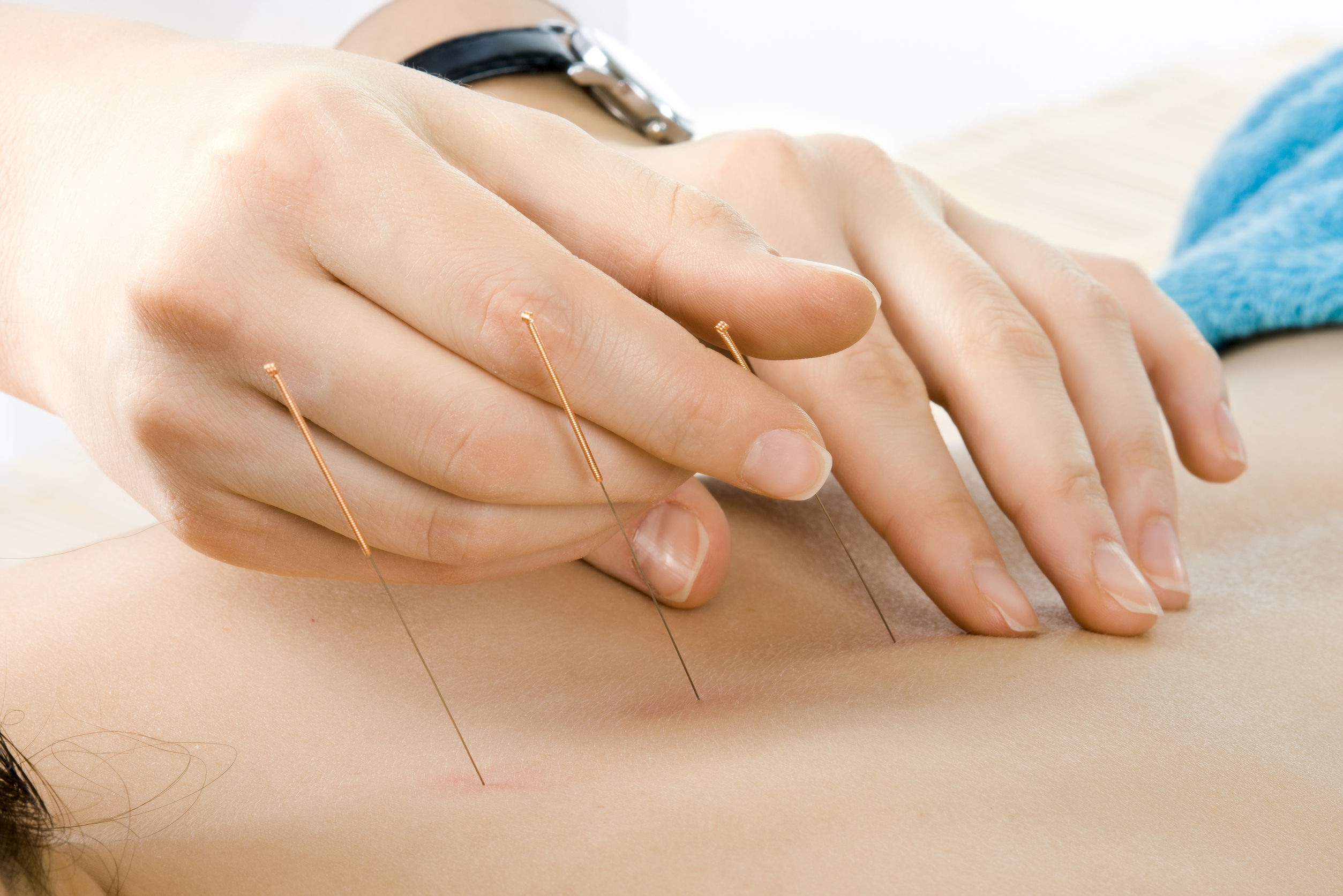 very close up acupuncture treatment , horizontal photo