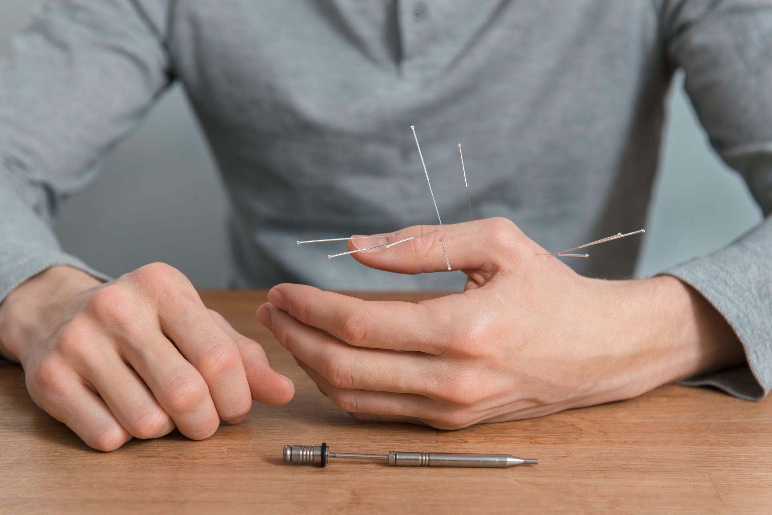 Acupuncture Therapy for Carpal Tunnel Syndrome